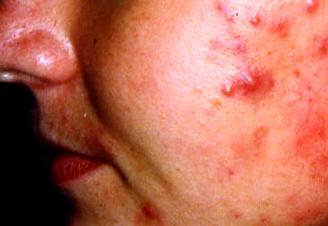 Quali i posti da adolescente sulle medicine di faccia sono