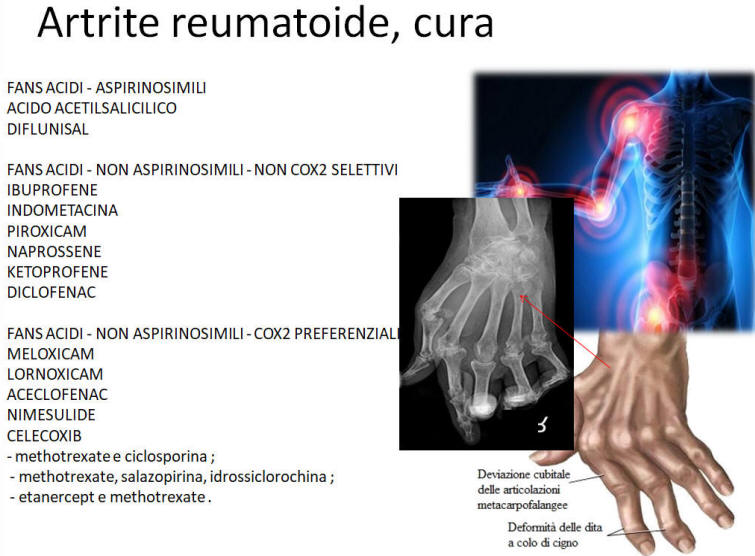 Artrite reumatoide: i farmaci