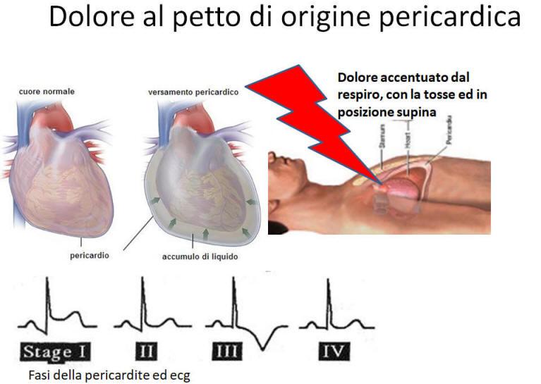 liquido nel cuore sintomi