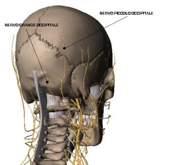 Ernia eliminazione intervertebrale