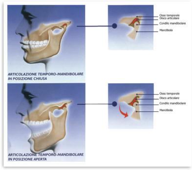 Polimialgia Reumatica