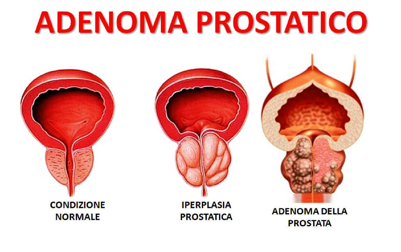 adenoma prostatico bilobato