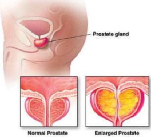 adenoma centrale alla prostata