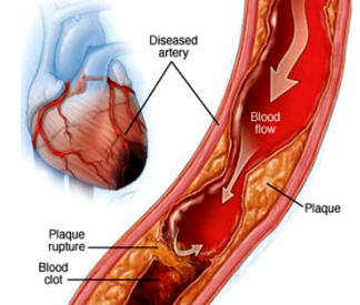 Does Kawasaki Disease Cause Heart Disease