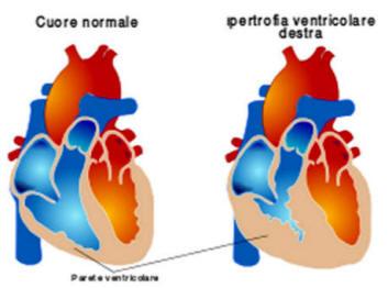 Il cuore polmonare
