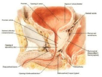 adenoma prostatico bilobato disomogeneo