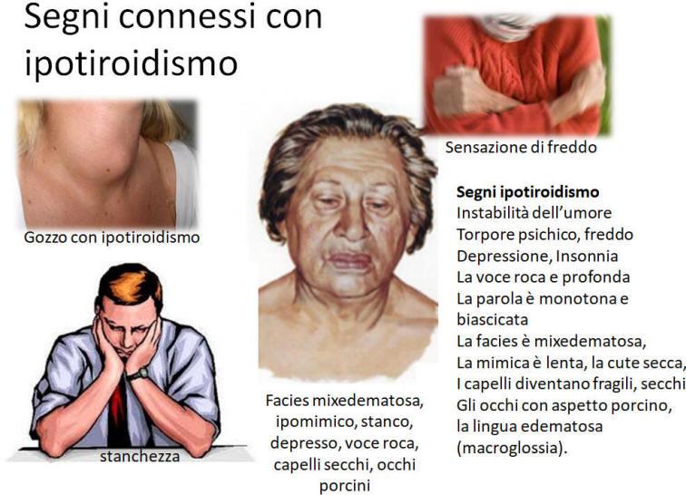 Risultati immagini per ipotiroidismo