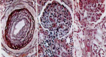 alterazioni istologiche della nefroangiosclerosi renale in corso di ipertensione